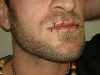 Sewn lips in Darwin detention centre.