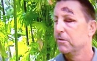 Robert Allenby bashing: witness gives conflicting story