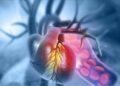 Coarctation of the Aorta Surgery