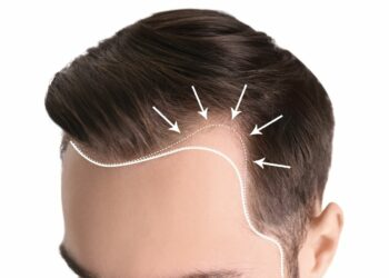 Sapphire Hair Clinic - What are the reasons behind affordable Hair transplants inTurkey?